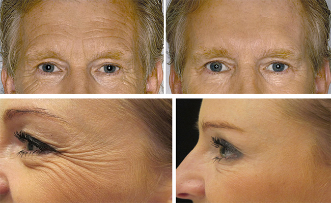 Botox In Clapham Amp Wandsworth Anti Wrinkle Injections