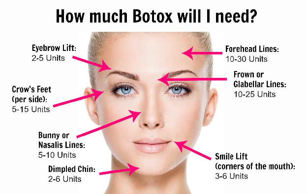 how-much-botox-will-i-need