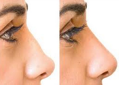 nose non surgical reshape2